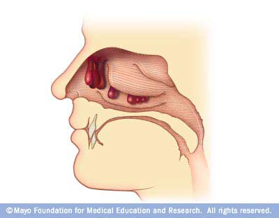 Nasal Polyps Diagram